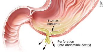 Perforated ulcer