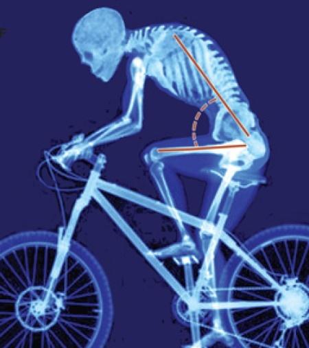 Bike Posture. Look familiar! Get straightened out at www.puravidasanantonio.com