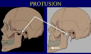protrucion Avanzamiento anormal de una parte, tumor u órgano, por aumento de volumen o por una causa posterior que lo empuja.