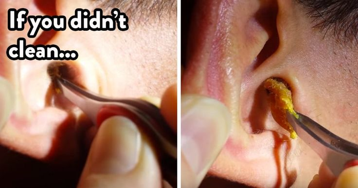 Causes and brilliant tips for removing earwax at home