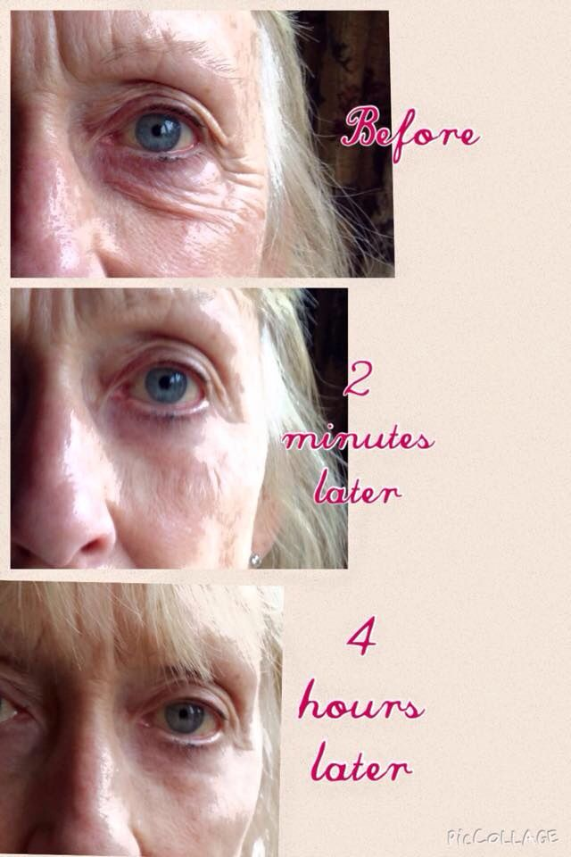 Instantly Ageless - Instant Botox in a bottle!