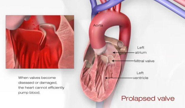 Mitral Valve Prolapse: Illustration of a Prolapsed Valve