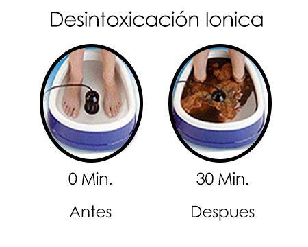 Terapia De Desintoxicación Iónica Para Limpiar El Organismo De Toxinas En Bellasteti-K