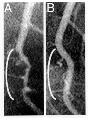 PLANT STRONG BEFORE AND AFTER PICTURE OF AN ARTERY. Followed the Dr. Esselstyn's Vegan Plan. Photo:  Coronary angiograms of the distal left anterior descending artery before (left bracket 11/27/96) and after (right bracket 7/22/99) 32 months of a plant-based diet without cholesterol-lowering medications, showing profound improvement.