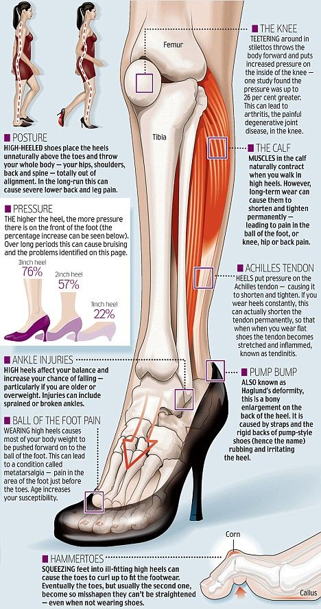 Foot Facts: Wearing high-heeled shoes increases the compressive force on your knee joints 23%. What to do about knee pain?