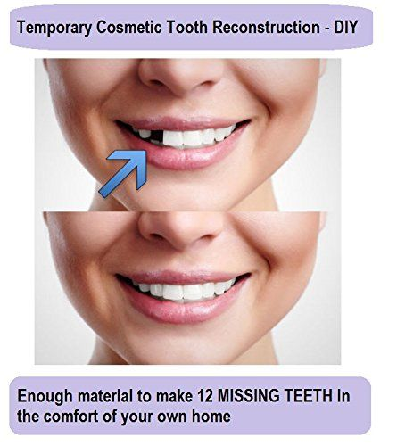 Price Tracking For Temporary Tooth Repair Kit Replace Missing Diy Make 12 Teeth Dental Repair Price History Chart And Drop Alerts For Amazon Manythings Onl Tooth Repair Tooth Replacement Dental Cosmetics