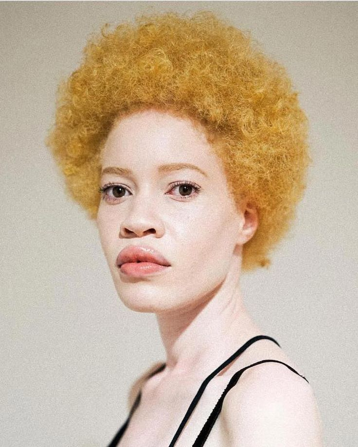 Диандра Форрест — афроамериканская модель-альбинос пошатнувшая традиционные понятия красоты