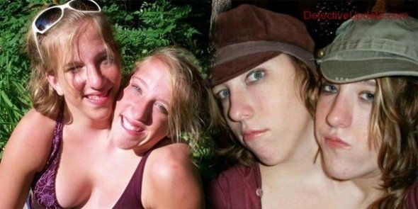 The lives of conjoined twins has got to be one of triumphs and struggles, but one getting engaged seems to be a mixture of both. Apparently,Brittany Hensel, of the conjoined Hensel Twins is now engaged. Only her. Not her sister, Abigail, though. I'm happy for Brittany because girl live your ...