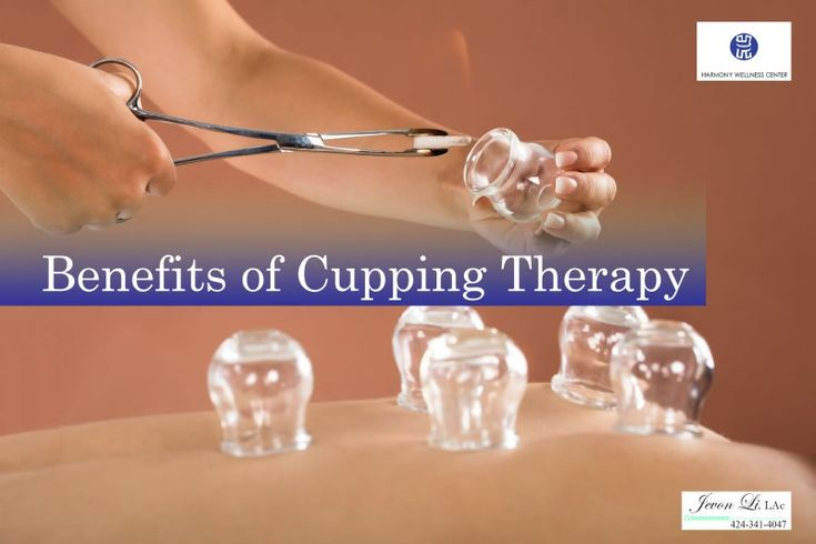 los angeles benefits of cupping therapy