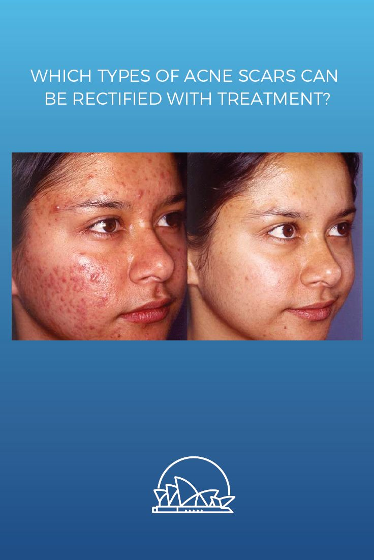 Which type of acne scars can be rectified with treatment?  Deep scarring – especially craters – can be improved somewhat, but typically not eliminated completely.  If you have mild to moderate acne scarring, then you can usually expect to see a 30-50% reduction in scarring.  Read on for more details on acne scar treatment. #antiwrinkles #plasticsurgery #cosmeticsurgery #acne https://www.sydneycosmeticclinic.com.au/blog/uncategorized/types-acne-scars-can-rectified-treatment/