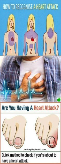 Could you have a heart attack and not know it?