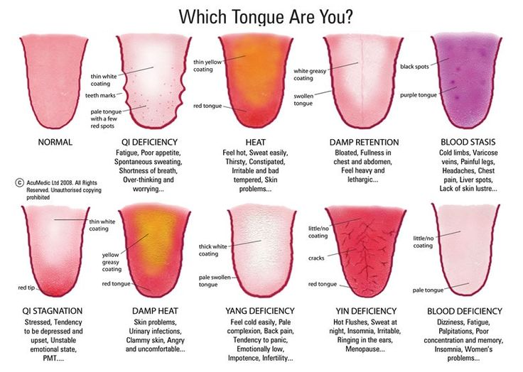TCM Tongue diagnosis - Complete Health and Happiness