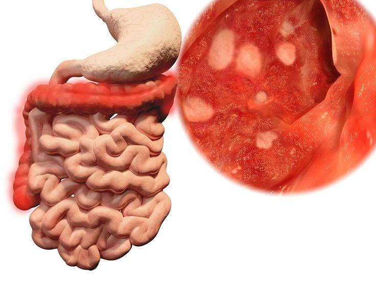 #Inflamación intestinal - La Prensa: La Prensa Inflamación intestinal La Prensa Es importante prestar atención a cambios en los hábitos de…