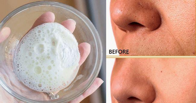 Como Cerrar Los Poros Abiertos Tratamiento Casero Cremas Para Las Arrugas Mascarillas Para La Piel