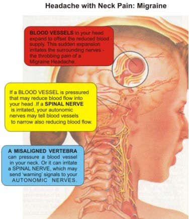 When dealing with a pinched nerve in the neck, recover without any invasive treatment is possible, but for some the pain from a pinched nerve in the neck and headache can persist for months or even years. Those who suffer from chronic headaches often do not connect their symptoms to a pinched nerve in the neck and continue to treat the headaches in isolation. http://www.painneck.com