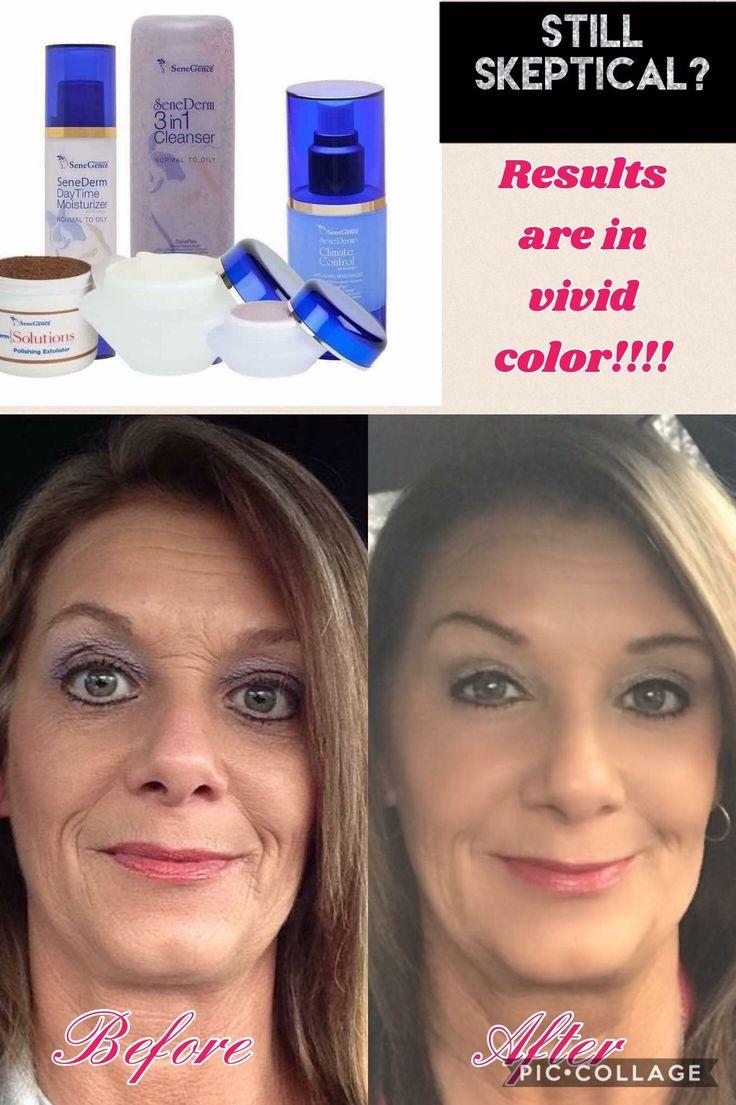 SeneGence skin care results | Lips by Amber | Pinterest ...