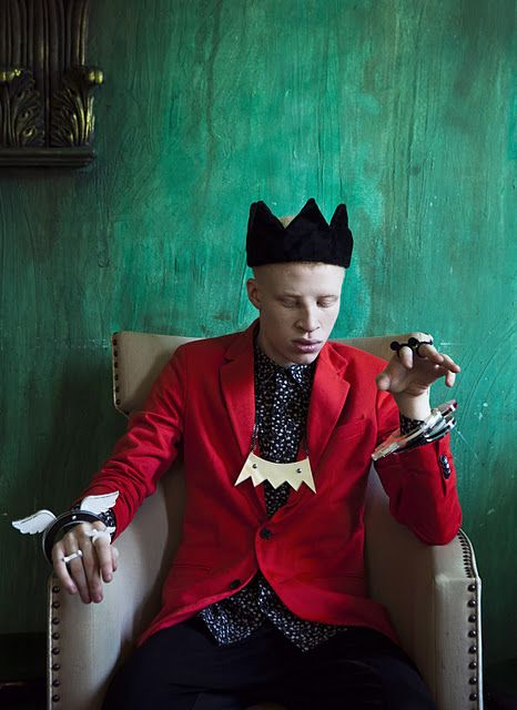 shaun ross is a model with albinism and has been in many hit videos. this interview talks about the history of his life from 15 to 20 (current age) and his aspirations. pretty cool! http://bossip.com/545498/first-albino-model-shaun-ross-talks-breaking-into-fashion-industry-and-early-childhood-struggles-video69691/