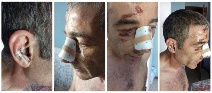 """""""Le escupió en la cara y le dio el primer tortazo""""    Alfonso Magaña intentó evitar una agresión machista, el atacante acabó dándole una p..."""