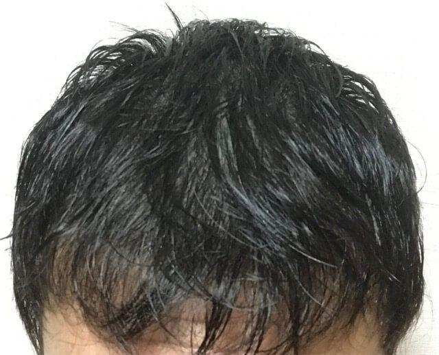 発毛 シンフォート
