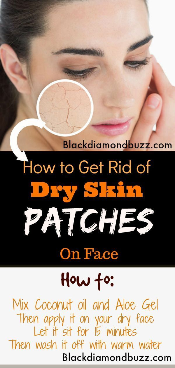 Home Remedies For Dry Skin On Face Remove Dry Skin Flaky Patches