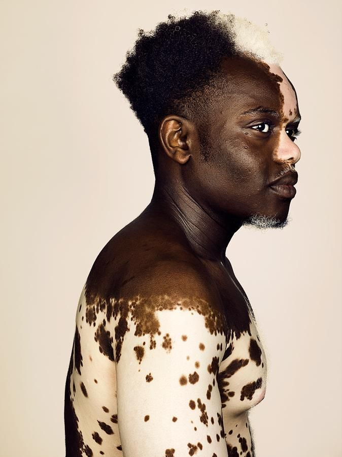 finding beauty in difference: model bashir aziz opens up about living with vitiligo