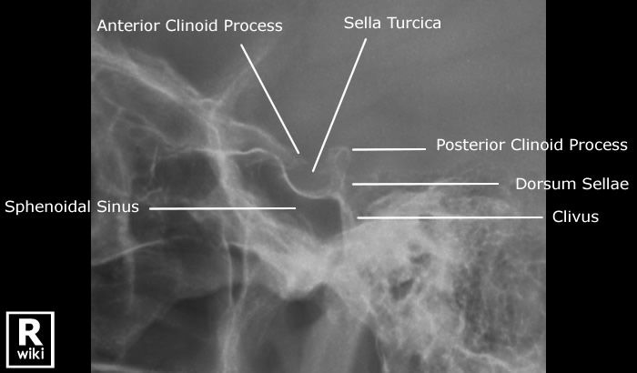 107 best images about radiology anatomy on Pinterest ...