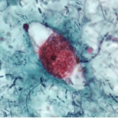Cystoispora belli (Isospora belli) electron micrograph - HIV Opportunistic Infection
