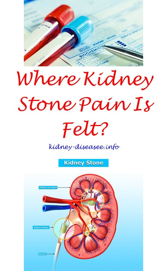 kidney stones causes and treatment - kidney care signs.kidney function test 8987912449