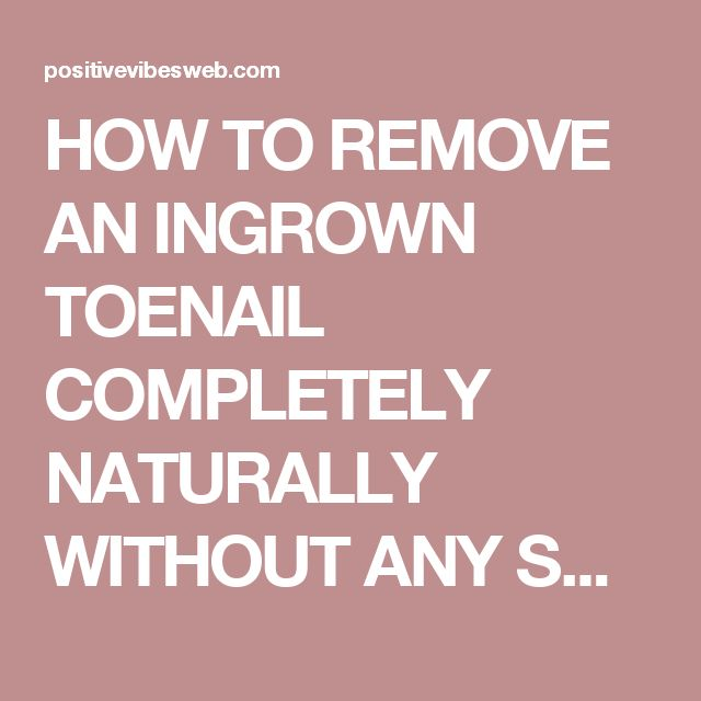 HOW TO REMOVE AN INGROWN TOENAIL COMPLETELY NATURALLY WITHOUT ANY SURGICAL PROCEDURE! - Positive Vibes Web