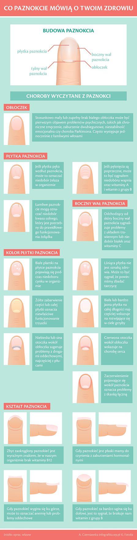 Zmiany w wyglądzie paznokci zawsze powinny wzbudzać naszą czujność. Na co należy zwracać uwagę, przyglądając się paznokciom? Przede wszystkim na zmiany w ich kolorze, ale też zmiany w kształcie i strukturze płytki paznokciowej.