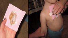 Mokry kaszel może zmęczyć, szczególnie dzieci. Ta naturalna metoda wyleczy cię już w ciągu nocy.