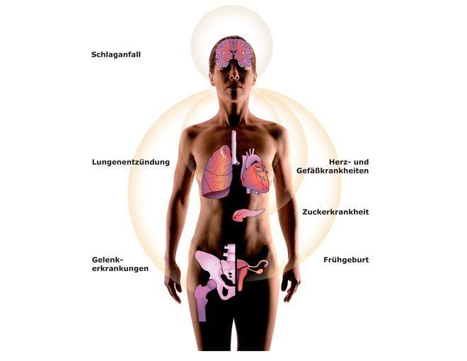 Vor allem die unbehandelte Parodontitis ist eine Risikofaktor für Schlaganfall, Lungenentzündung, Herz- und Gefäßerkrankungen, Zuckerkrankheit, Gelenkerkrankungen und Frühgeburten