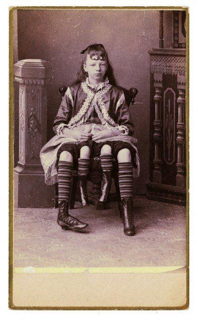Des phénomènes de foire dans les années 1870 freaks phenomene foire 11 409x660 photographie bonus