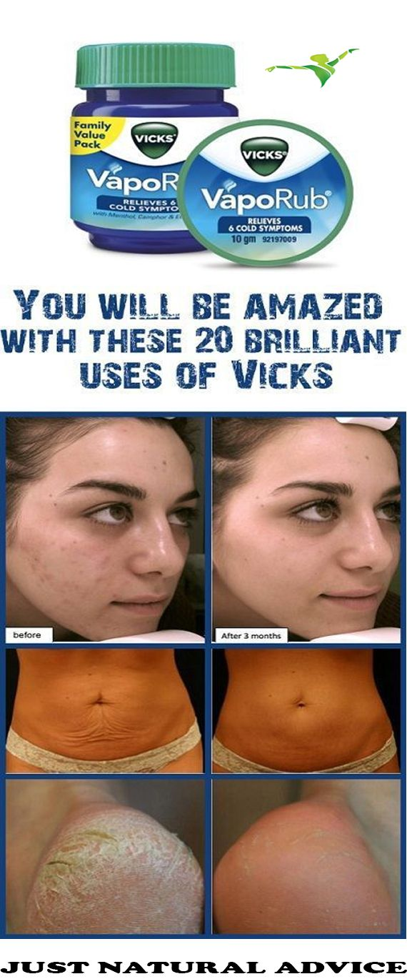 Vicks VapoRub is commonly used in the treatment of headaches, cold, cough, stuffy nose, throat