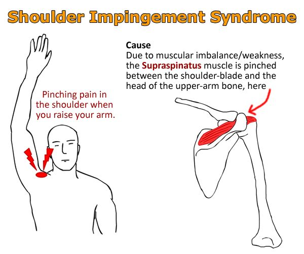 Shoulder impingement is a very common cause of shoulder pain. Description from…