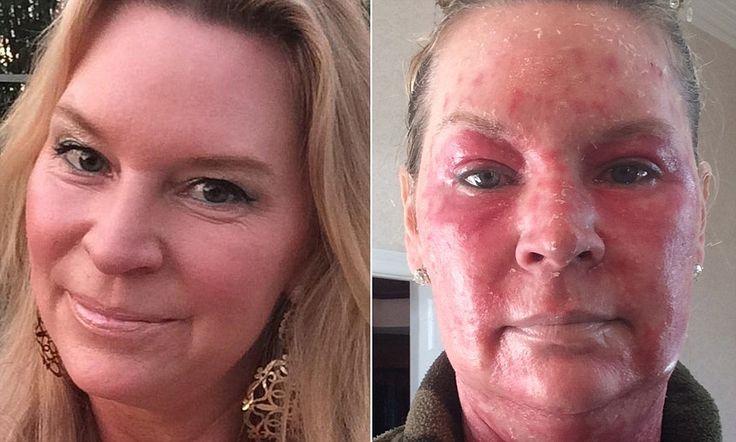 Queen of Versailles star Jackie Siegel reveals horrific laser mishap