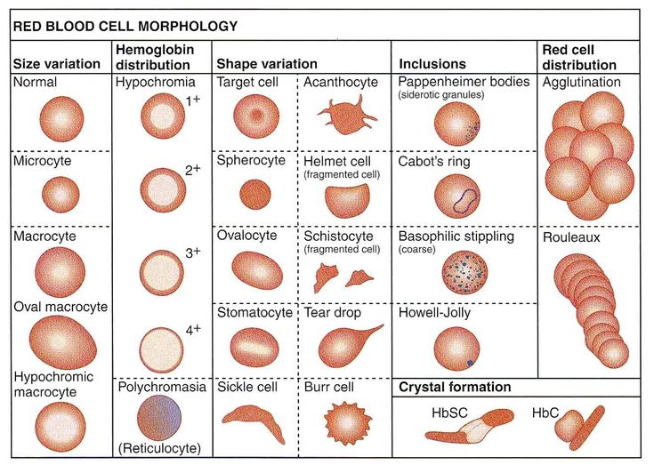 Summary of red blood cellsmorphology                                                                                                                                                      More                                                                                                                                                                                 More