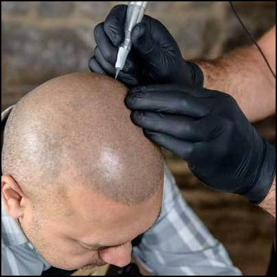 Scalp Micropigmentation: Is it an Effective Hair Loss Cure? | hairlosscureguide.com