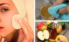 Βάλτε μηλόξυδο στο πρόσωπό σας & δείτε τι θα συμβεί σε τοξίνες, έκζεμα & σημάδια γήρανσης!
