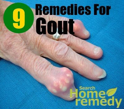 medical treatment of gout good painkiller for gout