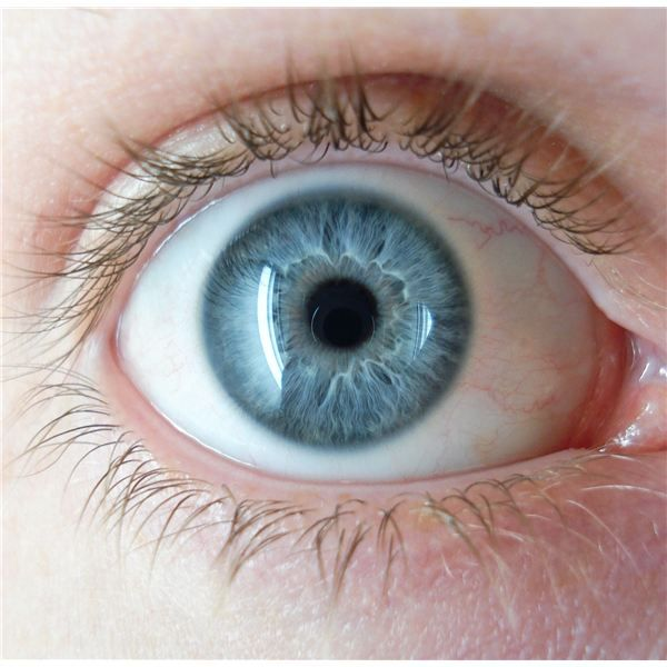 Most Rare Eye Color | Hazel Eyes and Genetics: How Chromosomes are Responsible for Eye Color
