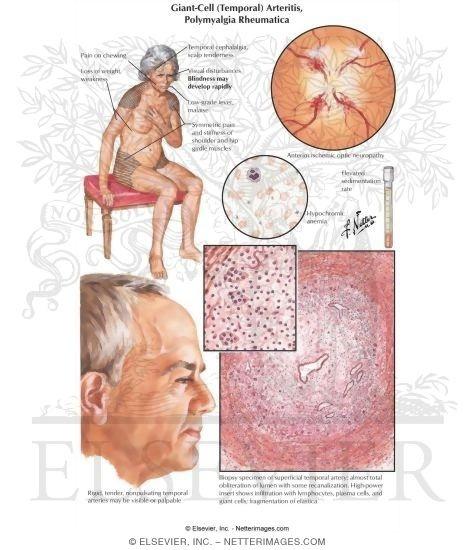 Tratament pentru Polimialgie reumatica - Herbagetica