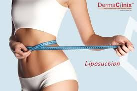 Pin On Liposuction Treatment What Are The Uses Of Liposuction