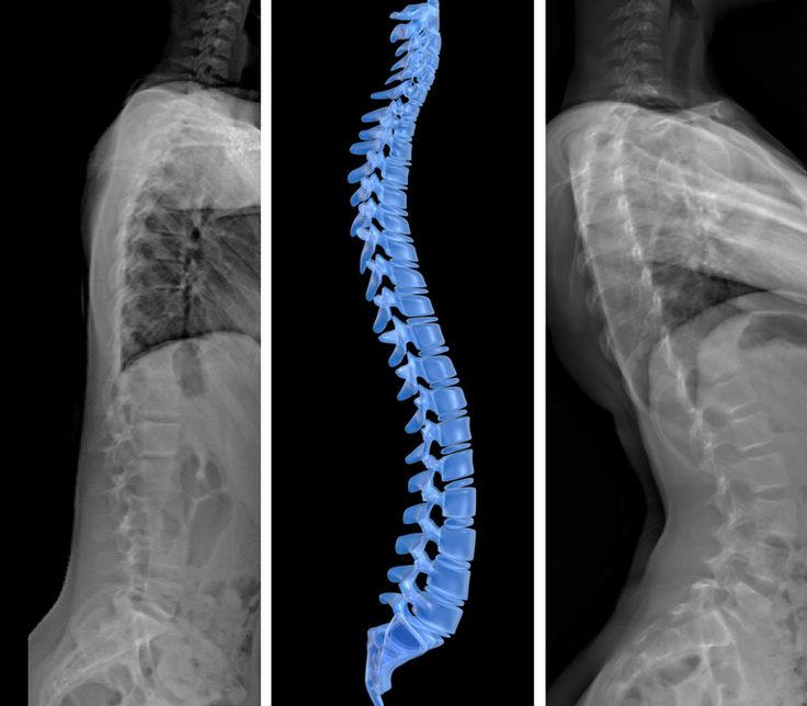 Learn more about the sagittal plane of scoliosis!