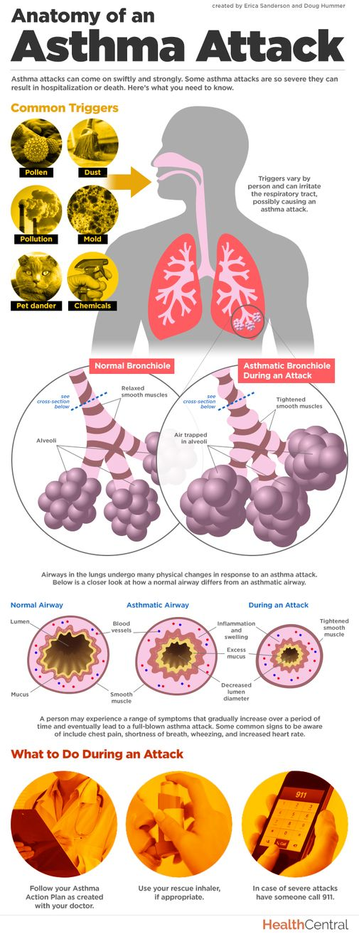 How exactly does an #asthma attack affect your lungs? This #infographic takes a closer look and offers information on common asthma triggers and symptoms.  Read more here: http://www.healthcentral.com/asthma/c/11407/169685/anatomy-asthma-infographic?ap=2012