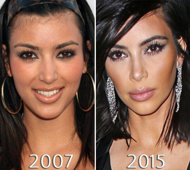 Kim Kardashian cheek implants before and after