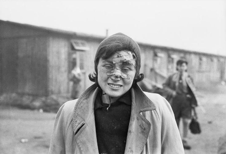 Liberation of Bergen-Belsen, April 1945: A young woman photographed two days after the British entered the camp; her face still bearing the scars of a terrible beating by the SS guards.Many inmates carried similar wounds of SS brutality and perished in the days after liberation.