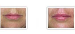 Injections d'acide hyaluronique avant/après au niveau des ridules des lèvres