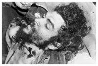 Bolivia, Santa Cruz, Vallegrande, Body of Che Guevara after insertion of formaldehyde, with forceps used to clamp the severed artery, late a...