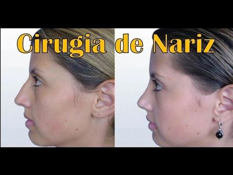 Rinoplastia con Fotos de Antes y Despues   Postoperatorio y Recuperacion - YouTube #rinoplastia #colombia #bogota